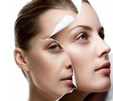Pay R155 For A Princess Mini Face Lift Consisting Of 1 Session Of RF Micro Current Facial Skin Treatment Valued at R500 From iLux Lipo