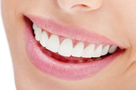 Teeth Whitening Treatment at Walmer Teeth Whitening Studio