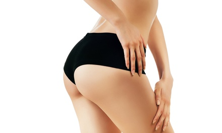 Laser Lipo Sessions from R270 at i–Lipo Somerset West (Up to 80% Off)