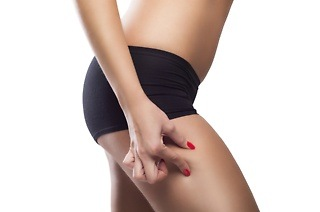 Cellulite Reduction Treatments from R349 at Laser Lipo House and Other Locations (Up to 75% Off)