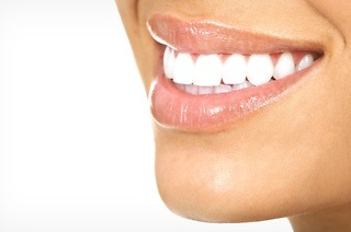 Teeth Whitening from R397 at Body Inc. Health & Lifestyle Clinic - Somerset West (Up to 55% Off)