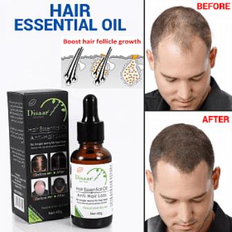 2 x Hair Essential Oil Anti Hair Loss Oil 30g