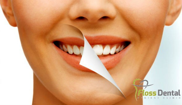 A Teeth Whitening Treatment for 1 Person at Floss Dental Hygiene Clinic, Panorama!