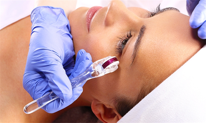 Microneedling Sessions at Soul Serenity Day Spa