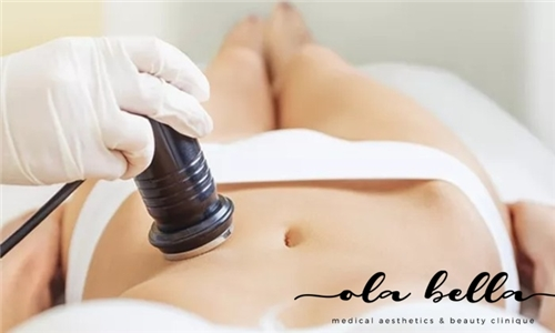 10 x Ultrasonic Liposuction Treatments from Ola Bella Medical Aesthetics & Beauty Clinique