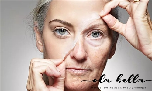 Chemical Peel & LED Light Therapy Combo from Ola Bella Medical Aesthetics & Beauty Clinique