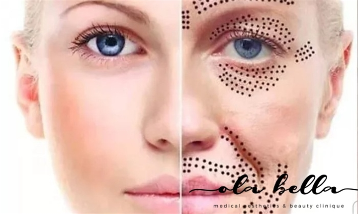 Anti-Ageing Face Microneedling Session from Ola Bella Medical Aesthetics & Beauty Clinique