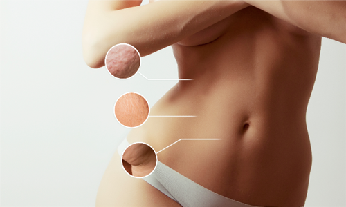 Laser Lipo Sessions Including FIR Sauna Sessions from Nu You