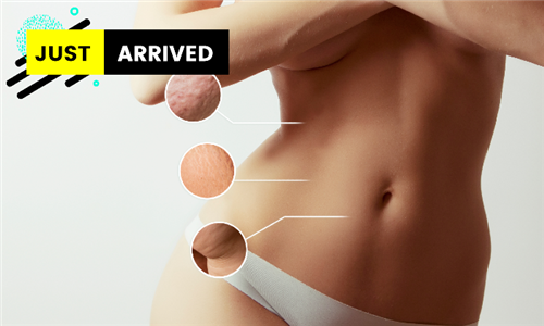 Cavitation Slimming Including Skin Tightening & FIR Sauna Sessions from Nu You