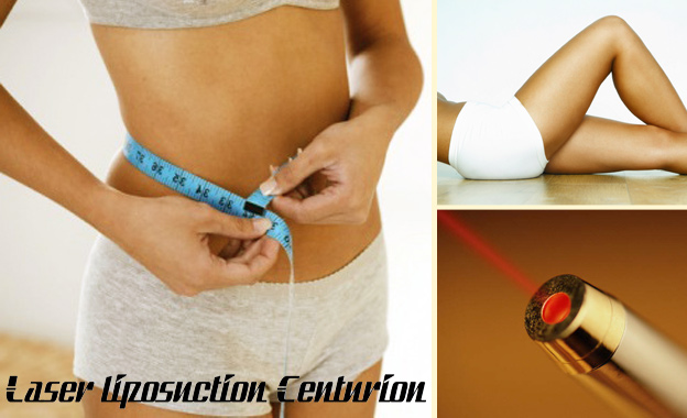 Get a Slimmer Shape with 5x Laser Acupuncture Weight-Loss Sessions for R800 at Laser Liposuction Centurion (value R2000)