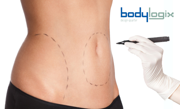 Melt away the fat with non-invasive radio frequency lipo from R675 at Body Logix in Design Quarter, Fourways (value up to R3000)